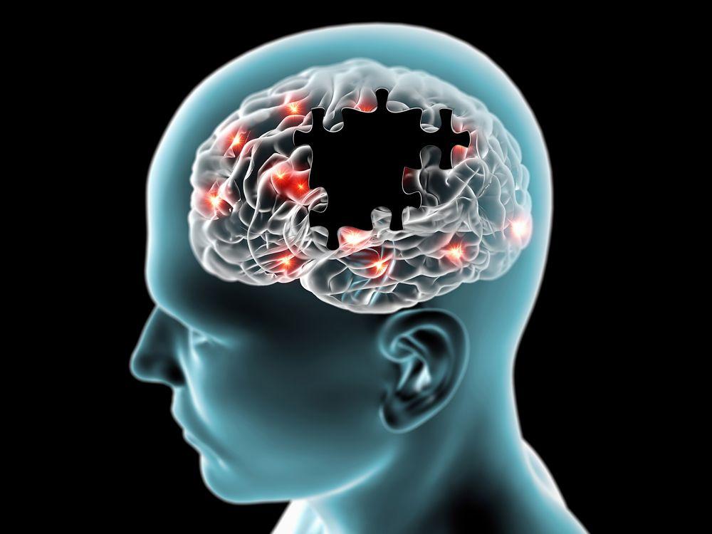 Cerveau atteinte d'alzheimer