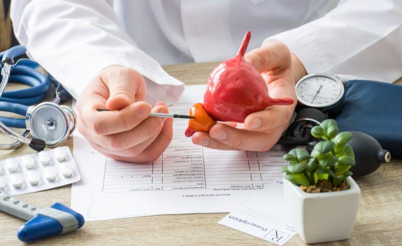 medecin montrant une representation d'une prostate